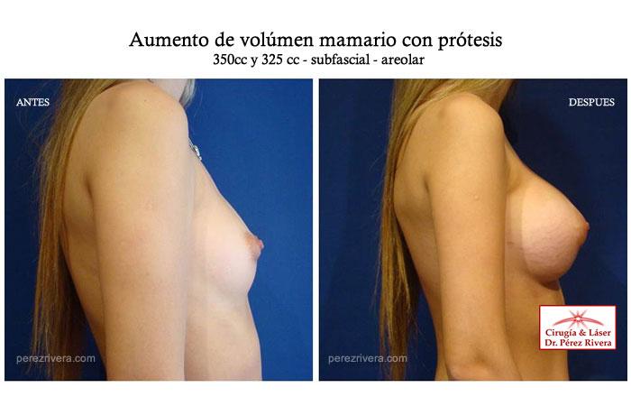 Rango de precios de los implantes mamarios