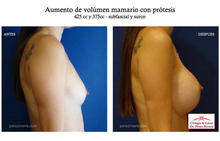 El aumento del pecho sin operación y las cremas