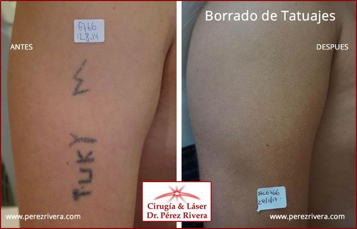 Como Borrar Un Tatuaje borrar tatuaje con laser en buenos aires, capital federal, borrar un