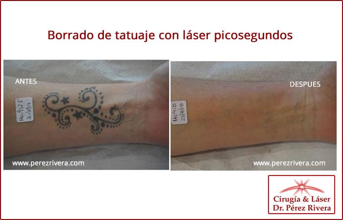 Tatuajes Borrados Por Laser borrar tatuaje con laser en buenos aires, capital federal, borrar un